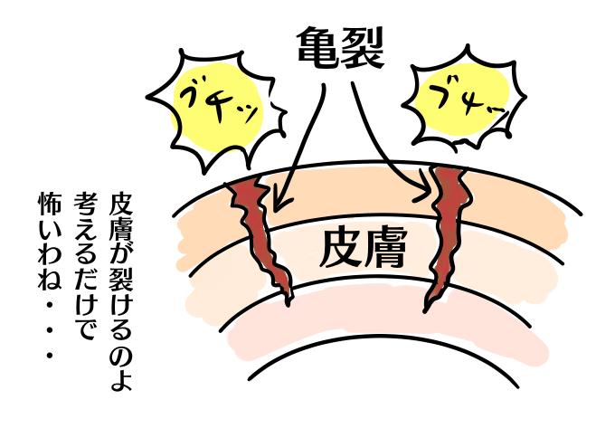 妊娠線とは急に膨らんだお腹に耐えられなくなった皮膚が裂けてできる痕