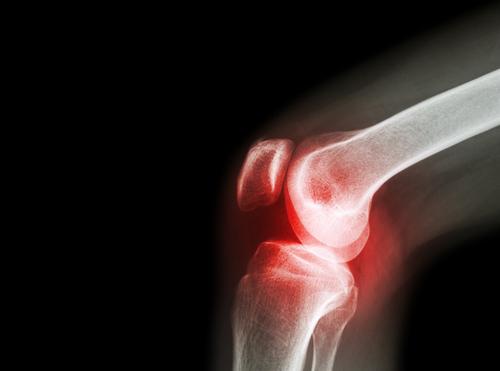 節々の痛み(関節炎)
