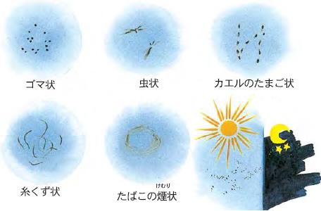 飛蚊症 症状