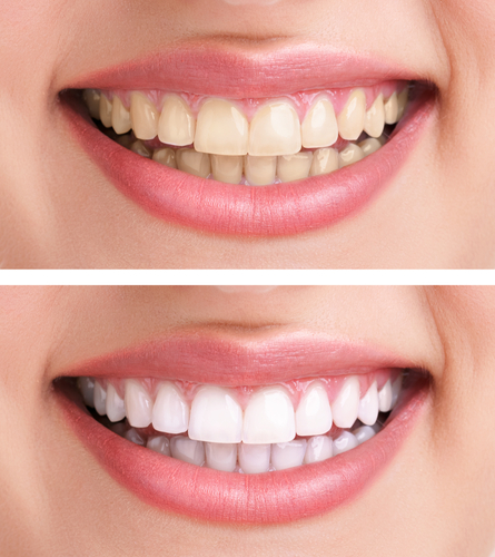 歯の白さで印象が違う