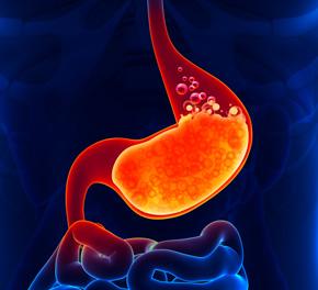 逆流性食道炎改善の3つのポイント:逆流性食道炎の症状・原因・ストレッチ・ツボ改善法を紹介