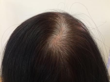 頭頂部から抜け毛、薄毛が進行