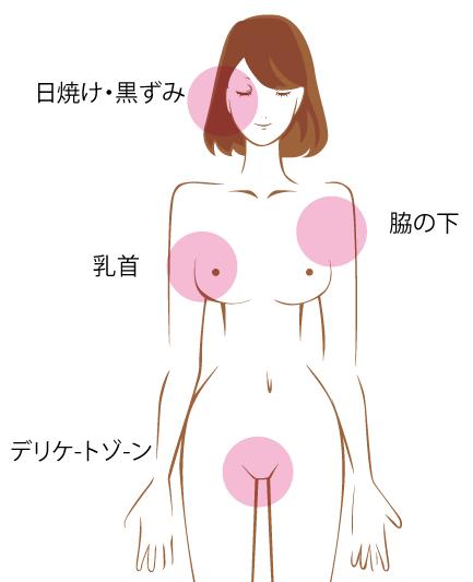 乳首の黒ずみ